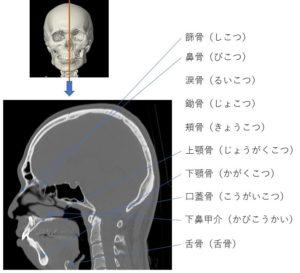 頭蓋骨の矢状断の画像です。